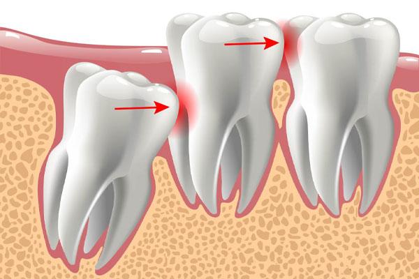 دندان نهفته چیست و با آن چه باید کرد؟